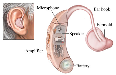 Hearing-aid-technology