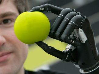 I-limb-technology